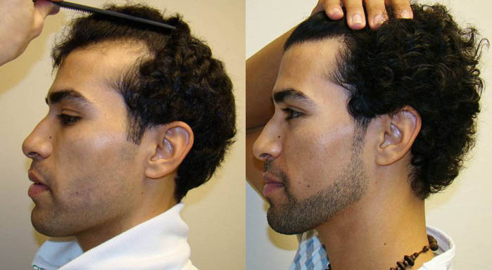 Propecia receding hairline