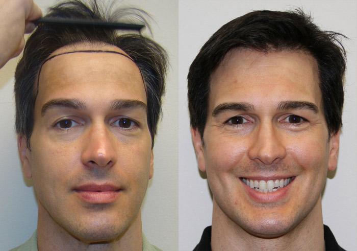 Hair Transplants in Fort Lauderdale